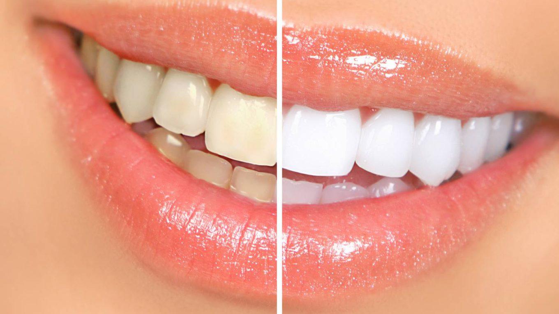 Fogfehérítő fogkrém