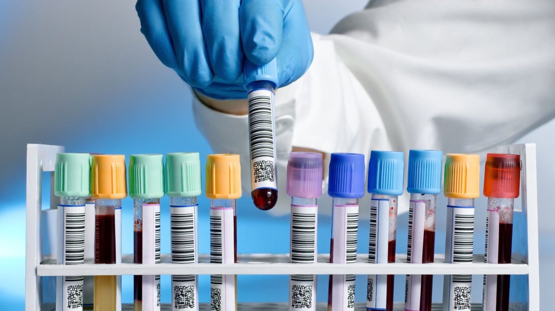 Laboratóriumi vizsgálat
